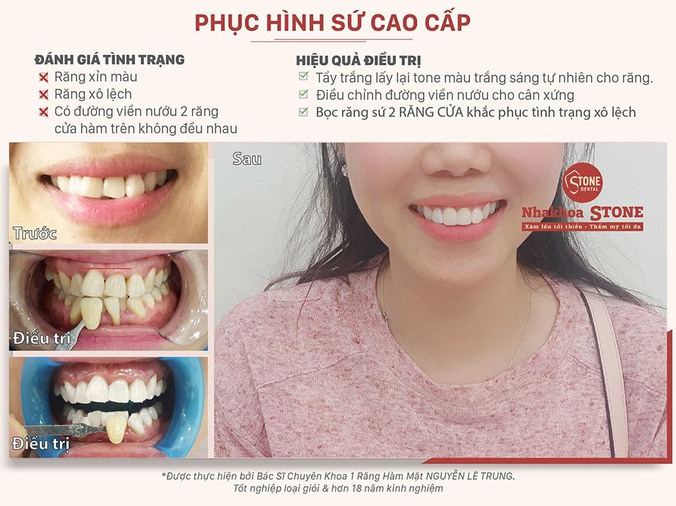 Hình ảnh điều trị bọc răng sứ thực tế tại Nha Khoa Stone