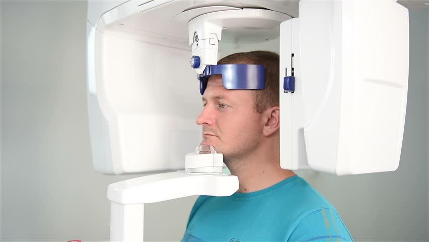 chup phim CT cone beam trước khi cấy ghép implant