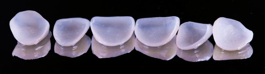 mặt dán răng sứ tại nha khoa stone