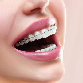 Nội nha - Lấy tủy răng