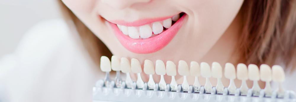 tẩy trắng răng tại nha hiệu quả