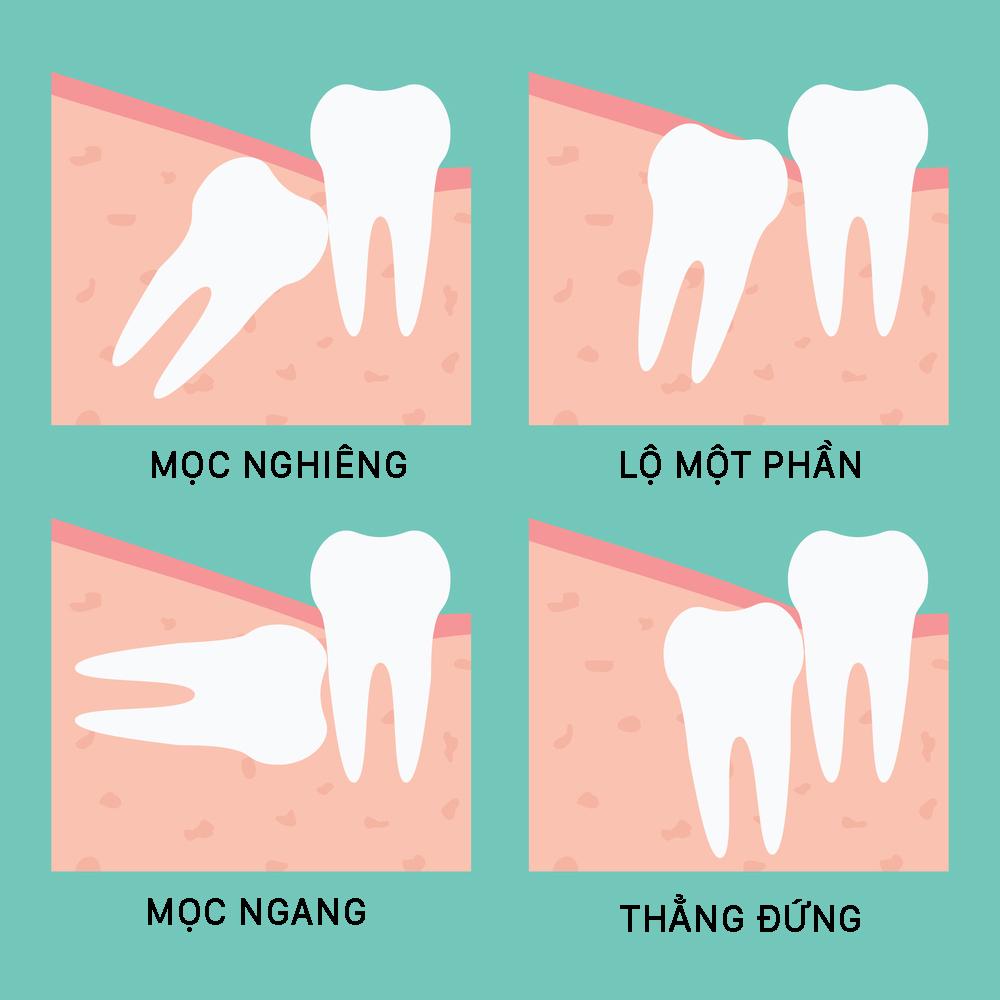 Các vị trí răng gây ảnh hưởng